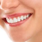 De belles dents blanches et saines